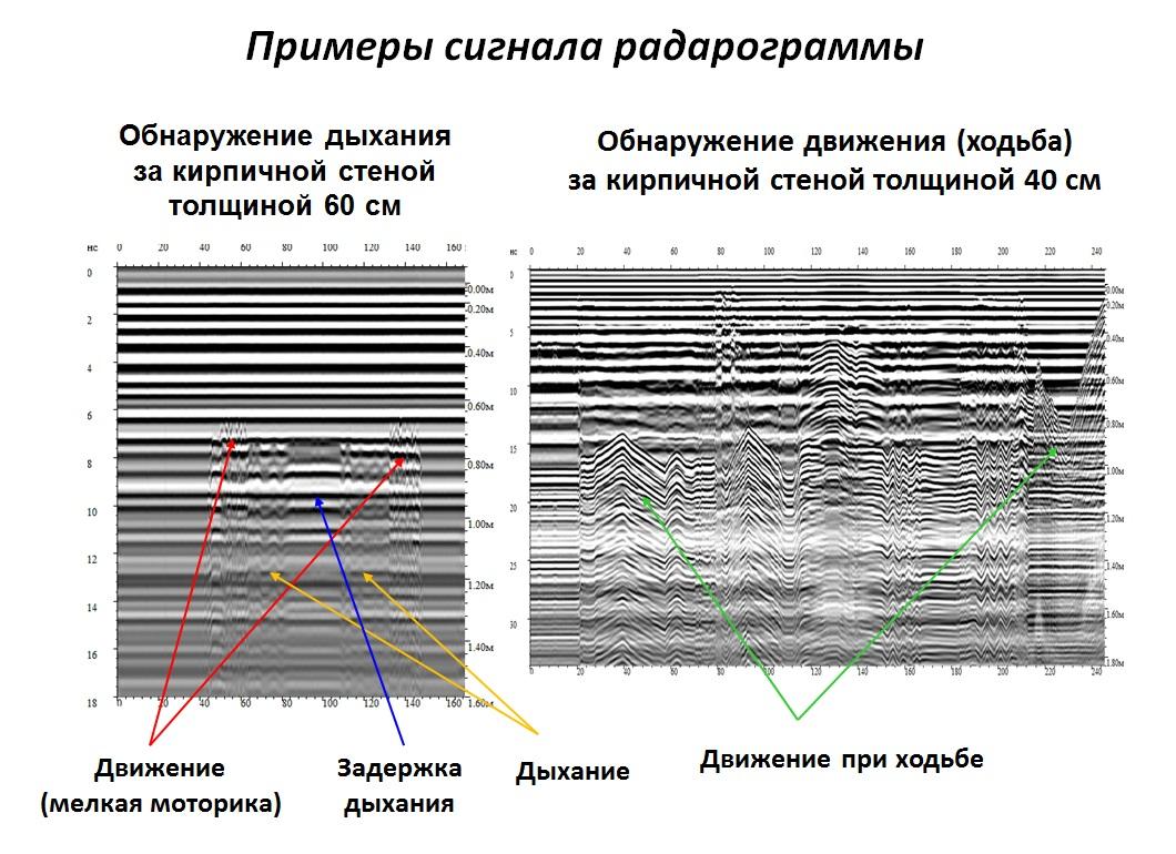 Примеры сигналов радарограммы